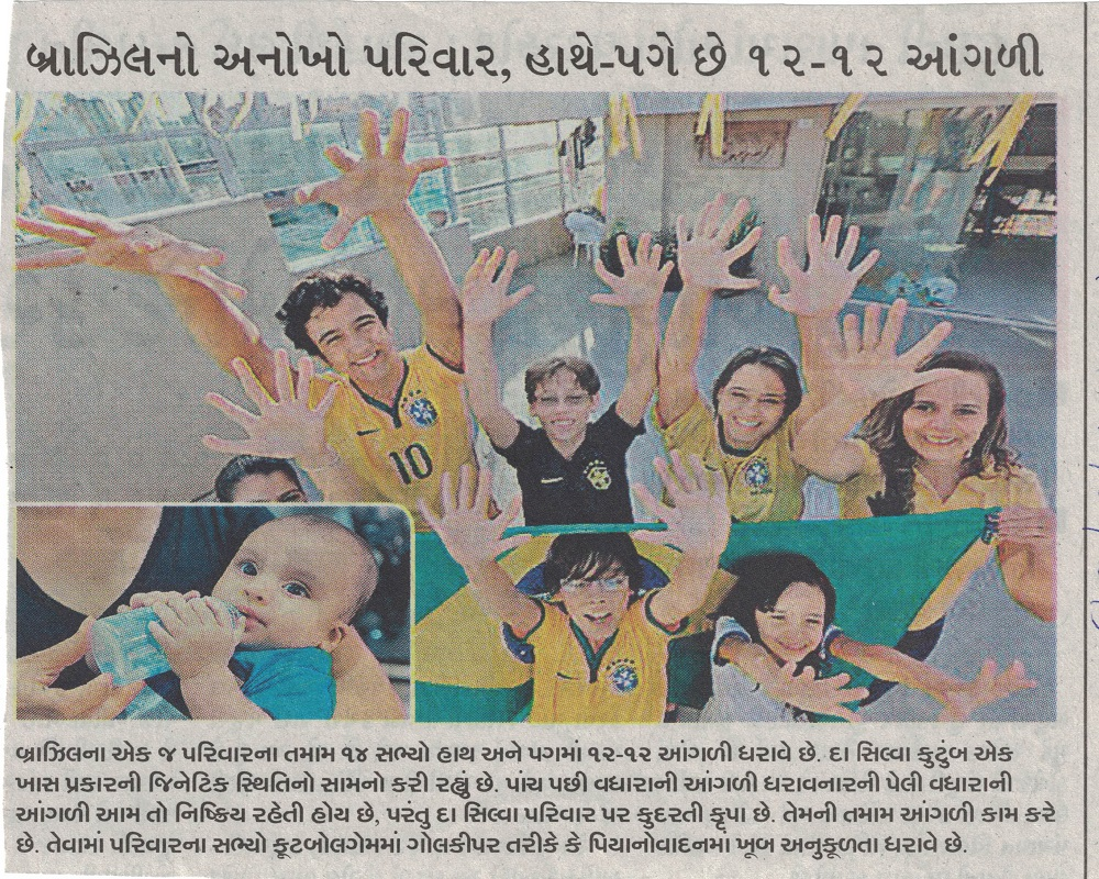 Brazils Unique Family, 12-12 Fingers at the Hand &