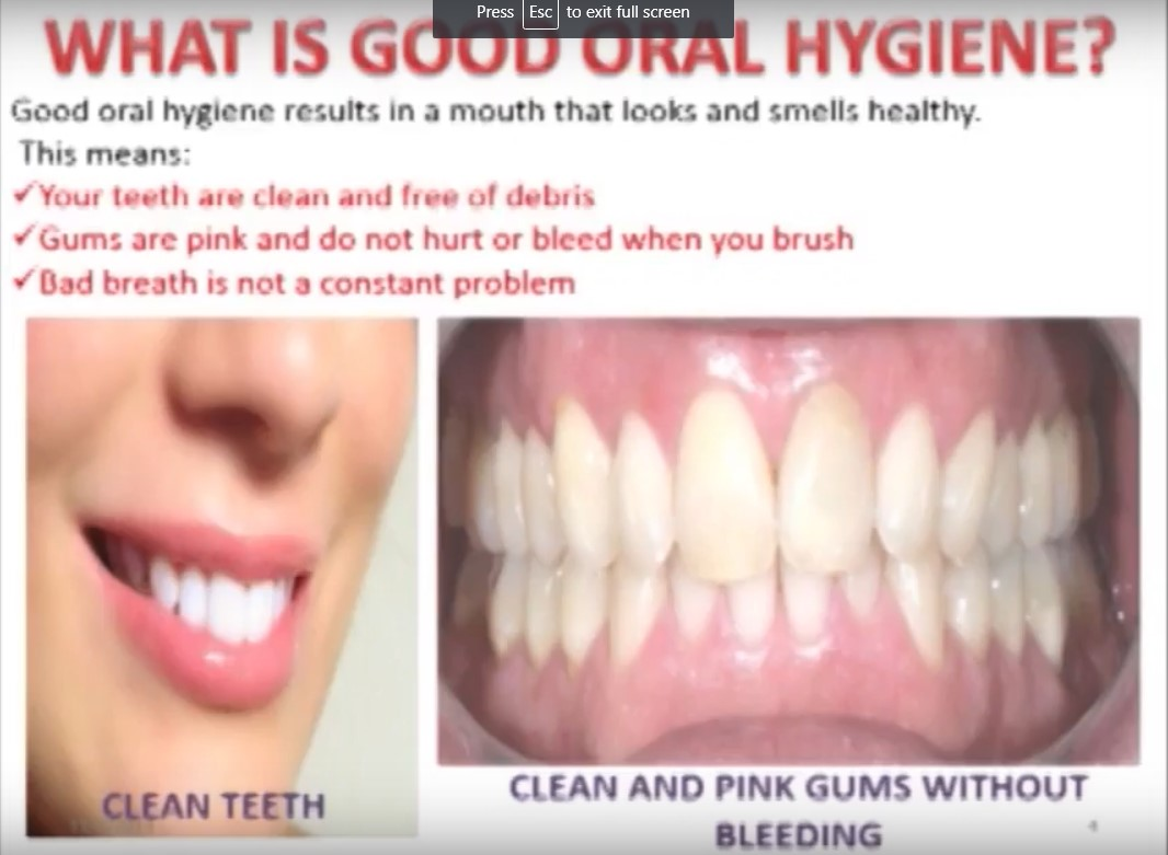What is good oral hygiene?